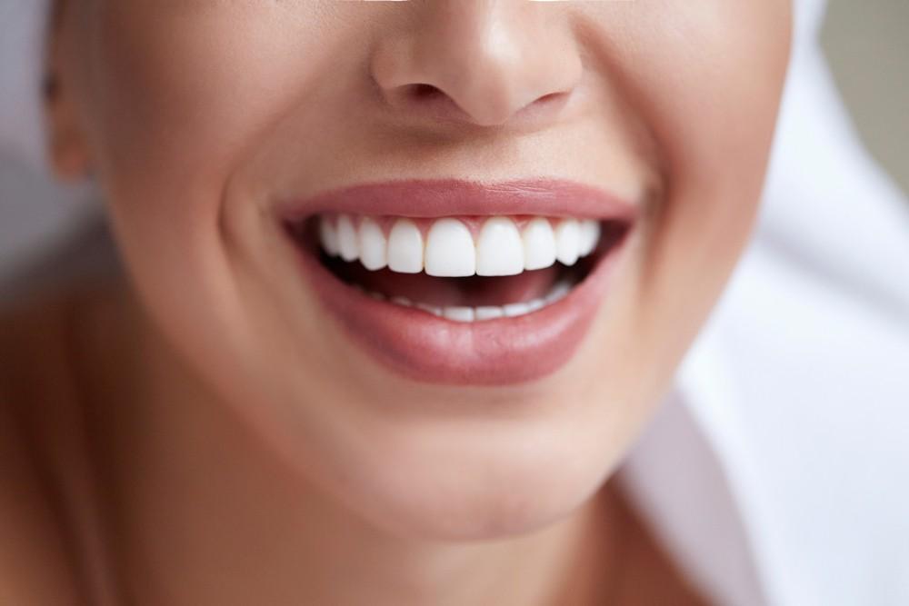 fatete dentare bistrita, albire dentara bistrita, estetica dentara bistrita, neomedica bistrita